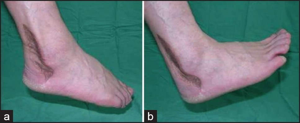 Figure 2: Appearance at 2 months after functional and aesthetic reconstruction of the Achilles tendon area using a bipedicled fasciocutaneous flap