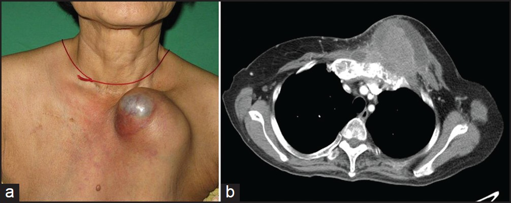 An isolated chest wall metastasis from cervical squamous