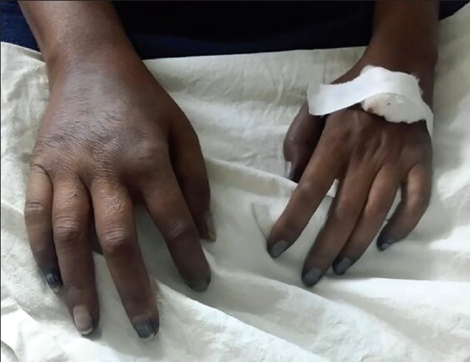 Figure 1: Ischemia of hands
