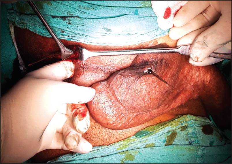 Anal sex testicles virus scrotum