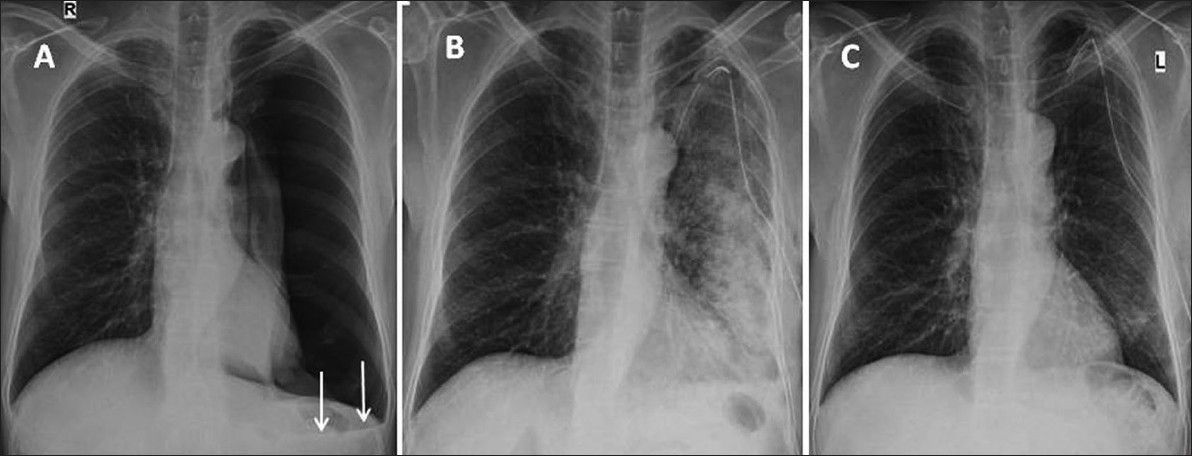 Figure 1: Serial chest radiographs. (A) On presentation showing a large pneumothorax with minimal fluid (arrows) on left side. (B) After 4 h of tube thoracostomy showing complete expansion of left lung with peripheral ground-glass haziness in upper and dense air-space opacity over mid and lower zones with chest tube <i>in situ.</i> (C) After 72 h showing complete resolution of the radiographic abnormality