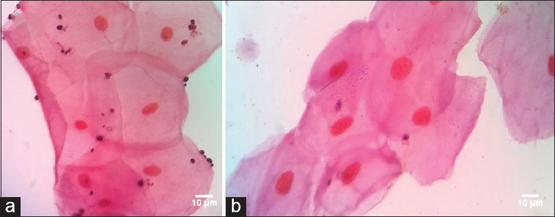 Figure 1: Adherence assay showing fungal cells adhering to vaginal epithelial cells. (a) Positive (b) negative control