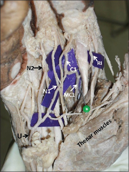 An eccentric anatomical variation of palmar vascular pattern: Report ...