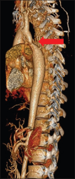 Figure 1: Preoperative chest computed tomography three-dimensional reconstruction revealing coarctation of aorta with stenosis, aortic isthmus, and several collateral vessels in the bilateral upper intercostal regions