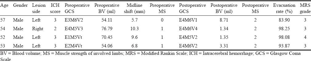 Minipterional craniotomy with transsylvian-transinsular