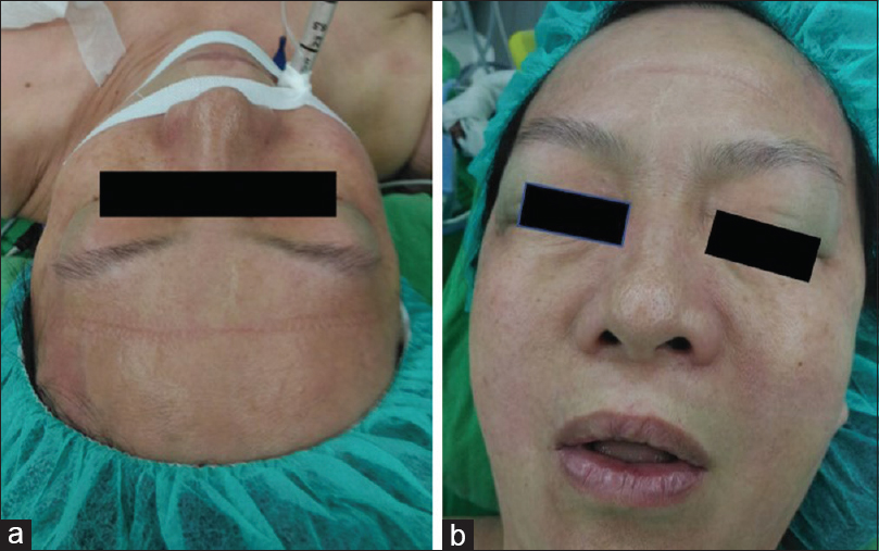 Figure 1: (a) Before extubation, the patient's bilateral upper eyelids were swollen, puffy, and blue, (b) multiple hives were observed on her face in the postanesthetic care unit