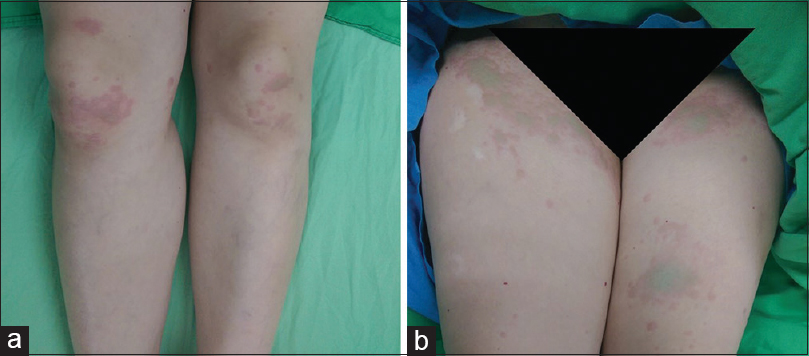 Figure 3: (a) Bilateral inguinal region (b) the patient's lower limbs had blue-colored urticaria