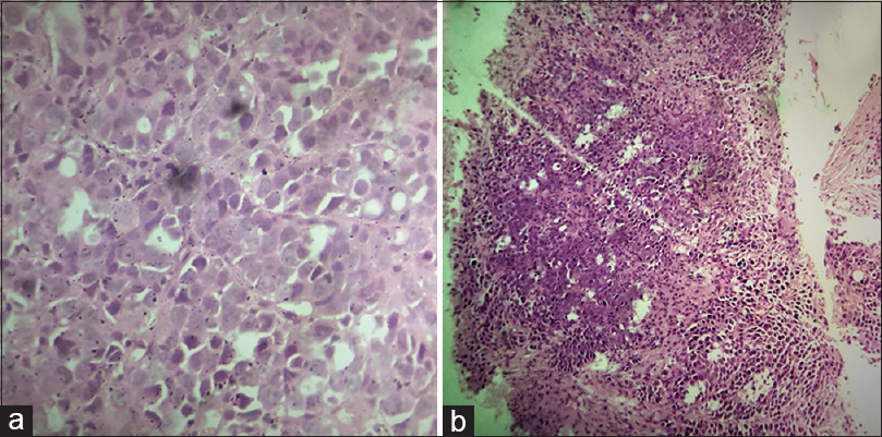 Figure 3: (a) Histopathologic examination from the left cervical lymph node showing sheets of polygonal cells with moderate-to-abundant eosinophilic cytoplasm, hyperchromatic nuclei showing atypia, and atypical mitosis suggestive of metastatic squamous cell carcinoma (b) Histopathologic examination from left axillary lymph node showing sheets of cells against a fibrocollagenous stroma showing features of metastatic squamous cell carcinoma