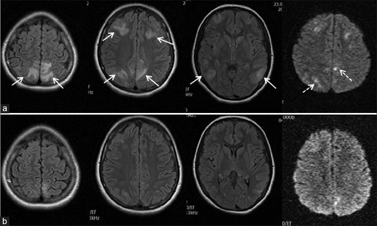 Figure 3: (a) Brain magnetic resonance imaging showing bilateral frontal, parietal, and temporal cortical vasogenic edema (arrows) and diffusion restricted sites (intermittent arrows). (b) Second magnetic resonance imaging (performed 12 days later) showing nearly totally recovery of lesions