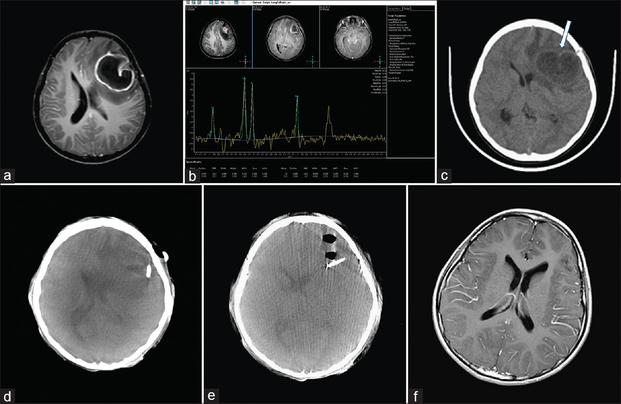Figure 1: Neuroradiological imaging of case 2 (a) axial contrast-enhanced T1-weighted magnetic resonance imaging demonstrating one regular thin-walled ring-enhanced lesion in the left frontal region. (b) Magnetic resonance spectroscopy showing mild elevated Cho/Cr and mild decreased N-acetylaspartate/Cr. (c) Computed tomography demonstrating brain abscess progressed (white arrow) 2 weeks after the  first surgery. Intraoperative real-time two-dimensional images of DynaCT disclosing our stereotactic aspiration catheter was not in the center of the abscess. (d) Thereafter, the catheter was adjusted to the ideal position in the center of the abscess. (e) Magnetic resonance imaging showing resolved brain abscess. (f) Four months after the surgery with the Artis Zeego flat-panel detector system