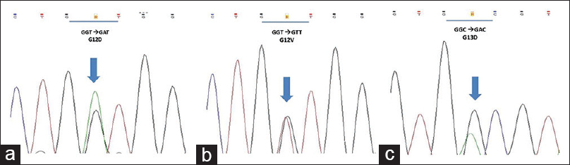Figure 3: Kirsten RAt sarcoma viral oncogene homolog mutations at exon 2 codons 12 and 13 from 3 different samples. The electropherograms display mutations of Kirsten RAt sarcoma viral oncogene homolog G12D (a), Kirsten RAt sarcoma viral oncogene homolog G12V (b) and Kirsten RAt sarcoma viral oncogene homolog G13D (c). Arrows show heterozygosity. R = A or G; K = G or T